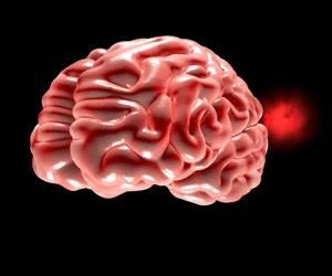 Фиброзная дисплазия: что это, причины, симптомы и методы, диагностика заболевания, лечение народными и медицинскими средствами