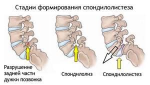 Смещение шейных позвонков: классификация и возможные причины спондилолистеза, характерные признаки и симптомы, методы лечения и возможные осложнения