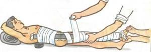 Вывих бедра: правила оказания первой помощи, вправление вывиха, хирургическое лечение, реабилитация после процедуры, лечение и профилактика