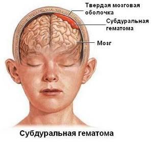 Гематома на голове после ушиба: виды и классификация образований, реабилитационный период и первая помощь, лечебные мероприятия