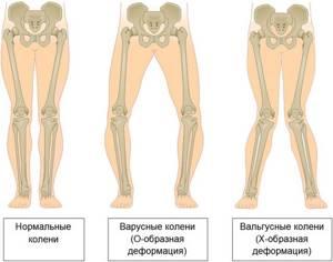 Варусная деформация коленных суставов: причины и симптомы заболевания, медикаментозные и народные методы лечения, способы профилактики и осложнения