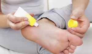 Лечение пяточной шпоры димексидом: форма выпуска препарата, принцип действия, особенности применения в комбинации с другими средствами и ограничения