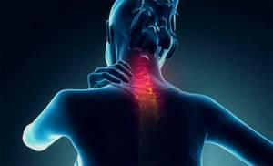 Цервикалгия шейного отдела: признаки возникновения заболевания и основные подходы к лечению, польза массажа и ЛФК