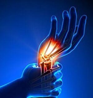 УЗИ кисти руки: показания и противопоказания к исследованию, его преимущества и недостатки, механизм проведения процедуры и расшифровка результатов, стоимость сеанса