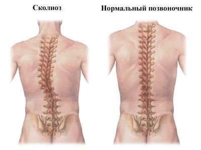 Кифотическая осанка: классификация искривления и клиническая картина, стадии болезни и ее диагностика, польза лечебной физкультуры и мануальной терапии, показания для операции