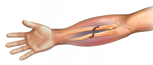 Ушиб предплечья: причины повреждения, характерные симптомы травмы и ее отличие от перелома, первая помощь пострадавшему, лечебные мероприятия и сроки восстановления