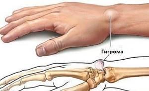 Признаки появления гигромы запястья: симптомы, признаки и последствия патологии, диагностика и лечение заболевания, профилактика и советы врачей