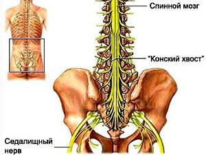 Синдром конского хвоста: причины нарушения, клинические симптомы и методы диагностики, лечение препаратами и показания к операции, возможные осложнения и прогноз для жизни