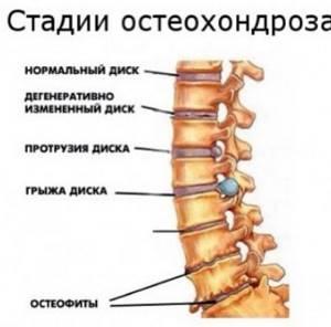 Гитт Виталий Демьянович: упражнения при шейном остеохондрозе, методика лечения патологий ОДА с помощью микродвижений и гимнастики