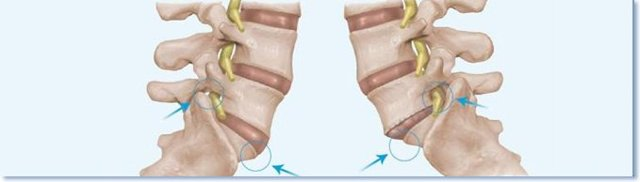 Смещение позвонков грудного отдела: симптомы и лечение - Сайт об опорно двигательной системе человека