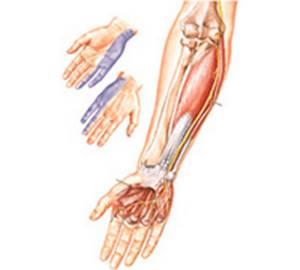 Невралгия локтевого нерва: причины патологии, специфические симптомы и диагностика, лечение препаратами и народными средствами, физиотерапевтические методики