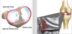 Разрыв заднего рога медиального мениска: степени повреждения по stoller и диагностика, консервативная тактика и народные средства, реабилитация после травмы