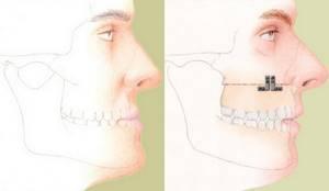 Корригирующая остеотомия: что это такое, описание и виды процедуры, показания противопоказания для проведения вмешательства, ход операции и реабилитация