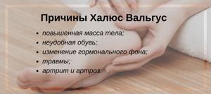 Лечение вальгусной деформации большого пальца стопы без операции: причины и особенности искривления, альтернативные способы исправления в домашних условиях