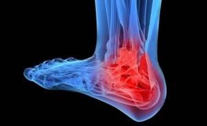 Трехлодыжечный перелом: причины и классификация травмы, характерные симптомы и способы диагностики, первая помощь и лечебные мероприятия, реабилитационный период