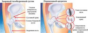 Коксит тазобедренного сустава у взрослых: разновидности и формы патологии, клиническая картина, диагностика, оперативные и медикаментозные методы лечения