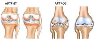 Врач, который лечит артроз и артрит: что это за болезни, отличие симптомов, методики диагностики, лечение и выбор специалистов