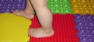 Плоскостопие у детей: особенности и причины формирования патологии, ее разновидности и степени развития, методы диагностики и лечения, профилактические мероприятия