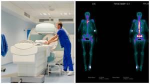 Остеосцинтиграфия: что это такое, подготовка к процедуре, расшифровка, как проводят
