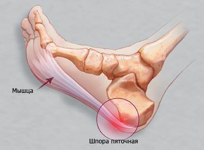 Лечение пяточной шпоры медицинской желчью: целебные свойства средства, показания и противопоказания к применению, рецепты для приготовления компрессов в домашних условиях