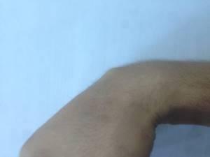 Гигрома на ладони: причины появления новообразования, клинические признаки и методы диагностики, современные и народные методы лечения, возможные осложнения и прогноз
