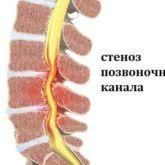 Может ли быть температура при остеохондрозе: общее описание патологии, причины возникновения, симптомы и рекомендованные жаропонижающие средства