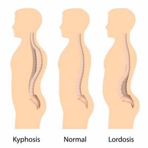 Кифоз грудного отдела позвоночника: признаки и причины болезни, клиническая картина и факторы риска, способы диагностики и терапии болезни, показания для операции и прогноз