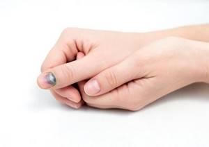 Ушиб пальца на руке: причины и симптомы, виды и степени травмы, первая помощь, способы лечения аптечными препаратами и средствами нетрадиционной медицины в домашних условиях