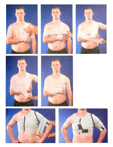 Нестабильность плечевого сустава: причины и характерные особенности патологии, клиническая картина и правила оказания первой помощи, методы лечения и профилактики
