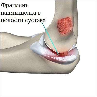 Перелом локтевой кости: классификация и симптомы травм, правила оказания первой помощи и методы лечения, сроки восстановления, возможные осложнения и последствия