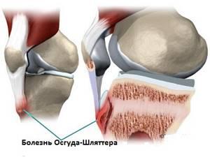 Остеохондроз коленного сустава: причины и признаки развития патологии, медикаментозное и хирургическое лечение, физиотерапевтические процедуры и народные средства