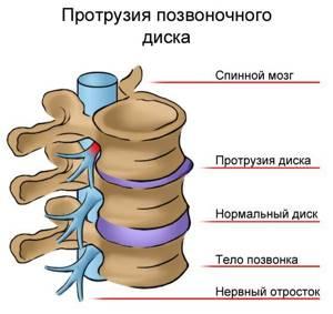 Протрузия дисков позвоночника: причины и факторы развития болезни, стадии заболевания и его диагностика, консервативные и оперативные методы терапии