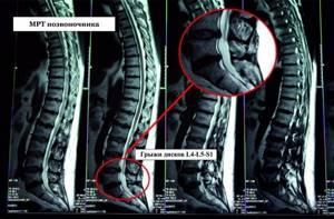 Показывает ли рентген грыжу позвоночника: подготовка к процедуре и методы диагностики, показания и противопоказания к обследованию, расшифровка снимков