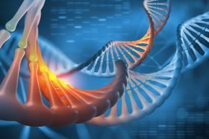 Остеопойкилия: причины появления патологии, что вызывает, чем проявляется, лечение, прогноз докторов
