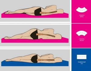 Как выбрать ортопедический матрас при грыже позвоночника: особенности патологии и важность правильной позы во время сна, общие и индивидуальные критерии покупки, рекомендации врачей