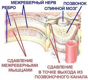 Болит левый бок со спины: признаки и симптомы патологии, способы терапии, методы профилактики и особенности диагностики, возможные заболевания