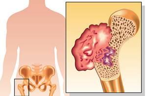 Остеосаркома: причины и симптомы болезни, локализация и стадии онкологии, способы диагностикии лечения, прогноз и показания для операции