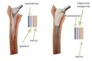 Эндопротез тазобедренного сустава: виды имплантов и способы фиксации, схема расположения и стоимость протеза, обзор лучших