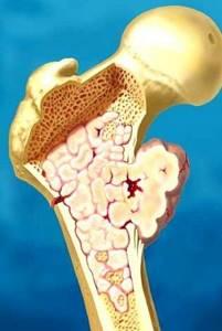 Хондросаркома: причины развития и классификация заболевания, основные симптомы и метастазирование, методы диагностики и лечения, профилактика и прогноз для жизни
