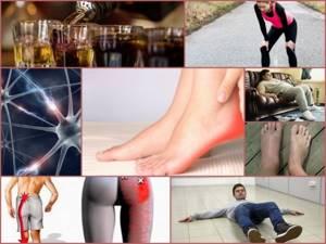 Конская стопа: что это такое и как лечить, признаки патологии и клиническая картина, диагностика деформации стоп и методы терапии, последствия болезни