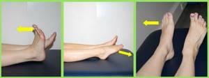 Лечение косточки на ноге у большого пальца без операции: причины нарушения, ортопедические, медикаментозные и народные средства для устранения патологии в домашних условиях