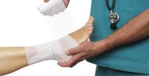 Препараты при переломах для быстрого срастания костей: группы рекомендуемых лекарств, обзор лучших медикаментов и БАДов, принцип их действия и способ применения