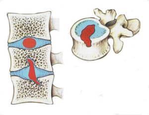 Лечение грыжи Шморля грудного отдела позвоночника: причины возникновения, симптомы, риски осложнений, диагностика, медикаментозная терапия, средства народной медицины и профилактика