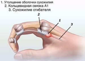 Щелкающий палец (стенозирующий лигаментит): признаки развития и клиническая картина, медикаментозная терапия и физиотерапия, стадии болезни