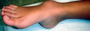 Гигрома на ноге: признаки и клиническая картина, как выглядит и почему появляется, способы терапии и показания к удалению, народные методы и последствия патологии