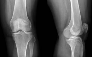 Дисплазия коленного сустава: определение и причины патологии, симптомы, диагностика у детей и взрослых, лечение ортопедическими конструкциями и хирургическим вмешательством
