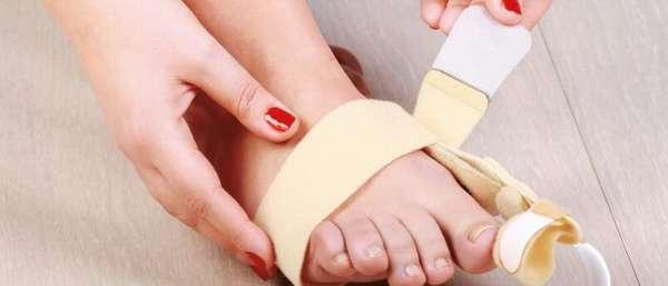 Перелом большого пальца на ноге: классификация повреждения, отличительные признаки и диагностика, лечение и реабилитационные мероприятия, сроки восстановления и осложнения