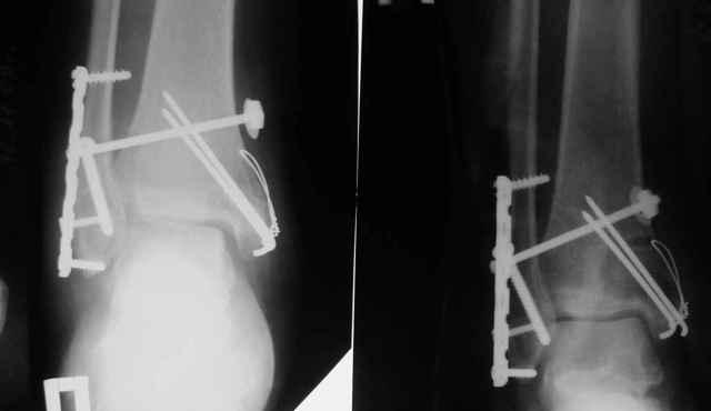 Операция при переломе лодыжки: особенности проведения, показания, реабилитационный период после хирургического вмешательства
